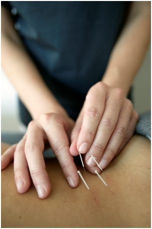 Tampa Acupuncture for Pain Management