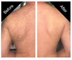 Tampa Hair Removal