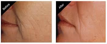 Tampa laser skin rejuvenation