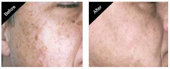 clareon skin rejuvenation