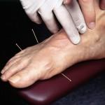 acpuncture in foot