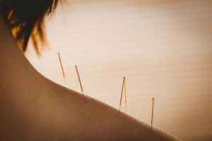 44769827 - young woman getting acupuncture treatment in therapy room