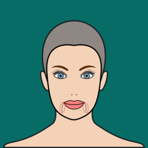 Getting Rid of Your Marionette Lines with Juvederm Vollure