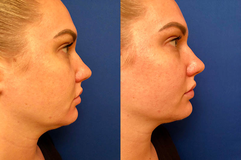 Chin and Marionette Line correction with Juvederm Ultra Plus
