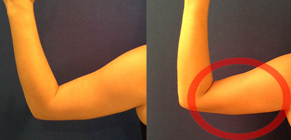 Coolsculpting Under Arm