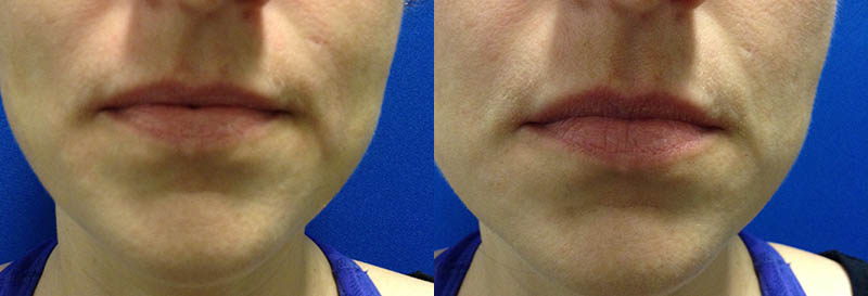 Filler for lips - Used half a syringe of Volbella
