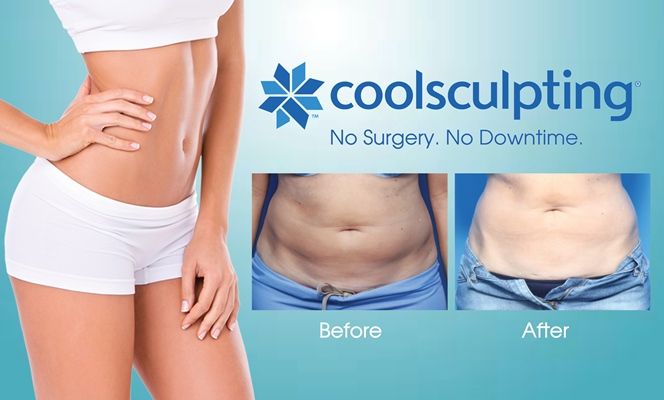 coolsculpting st petersburg florida