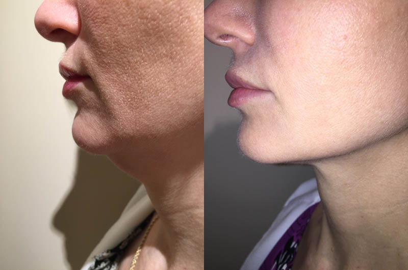 Kybella for under the chin