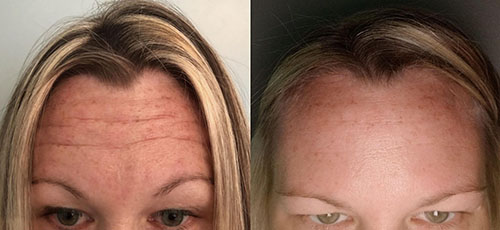 Botox - Before _ After (14 days)