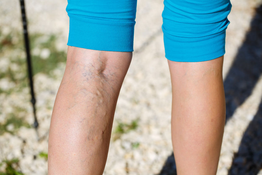 spider vein removal tampa