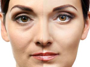 Advantages of Botox