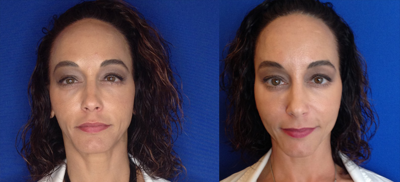 7 Syringes Juvederm Ultra and 2 Juvederm Ultra plus. Jaw, cheeks, temples, Nasolabial folds, and lips