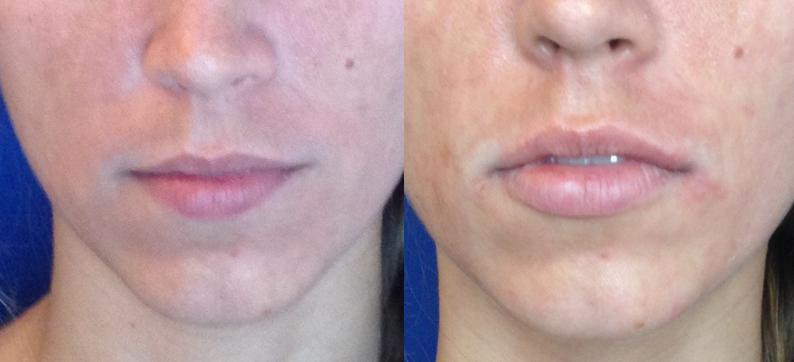Lips, 1 Juvederm Ultra