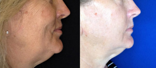 After 2 Morpheus8 treatments to Face and Neck with PRP