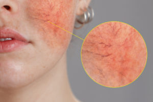 Redness From Rosacea