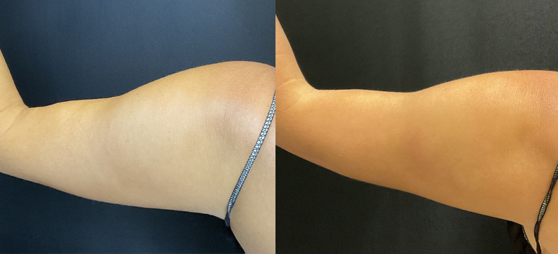 CoolSculpting Arms Before After