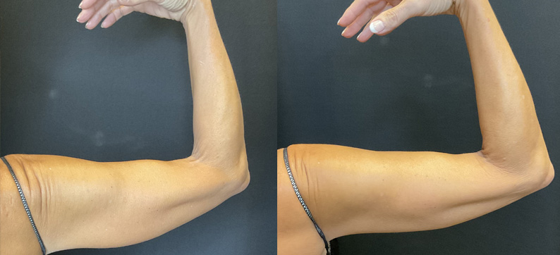 CoolSculpting Arms Before After 1 Treatment