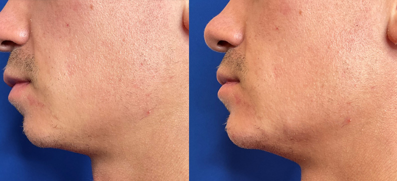 Jawline Filler Male Before After