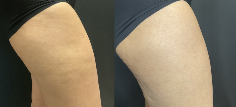 Qwo Outer Thigh Before After