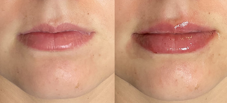 Vollure Lips Before After