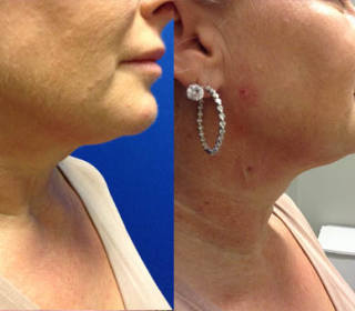 Before and After PDO Threads of lower face and neck.