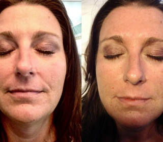 Belotero under eye correction and nasal labial folds